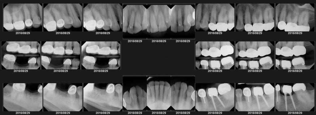 Professional Dental Exam, Diagnosis, Risks & Consequences, Benefits of Treatment, Optional Treatment, Alternative Treatment, Treatment Planning