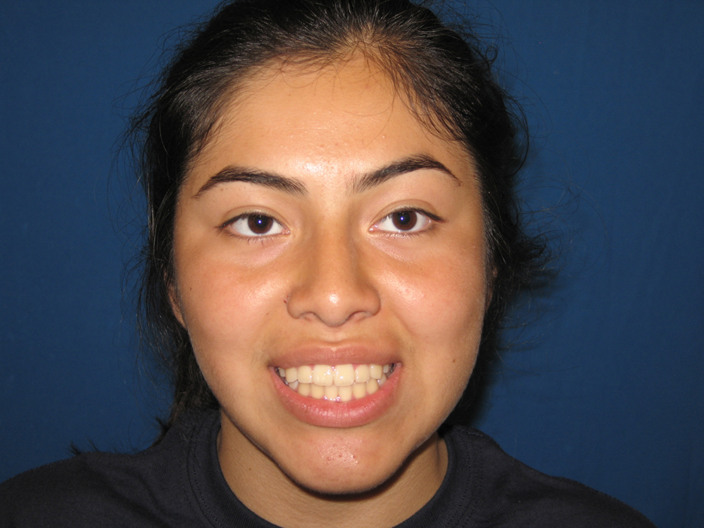 Dental Orthopedics & Orthodontics, Facial Development Enhancement