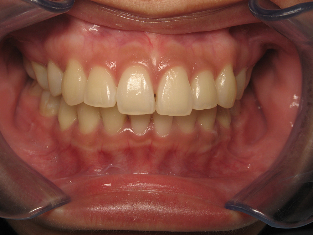 Dental Restorations: Fillings, Build-up, Veneers, Crowns, Bridges